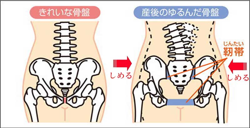 産後の骨盤矯正施術