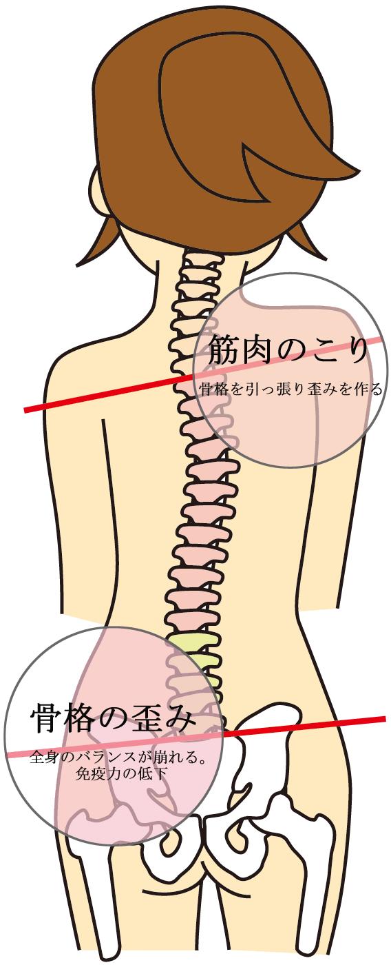 不調の原因は骨格の歪み筋肉のこり